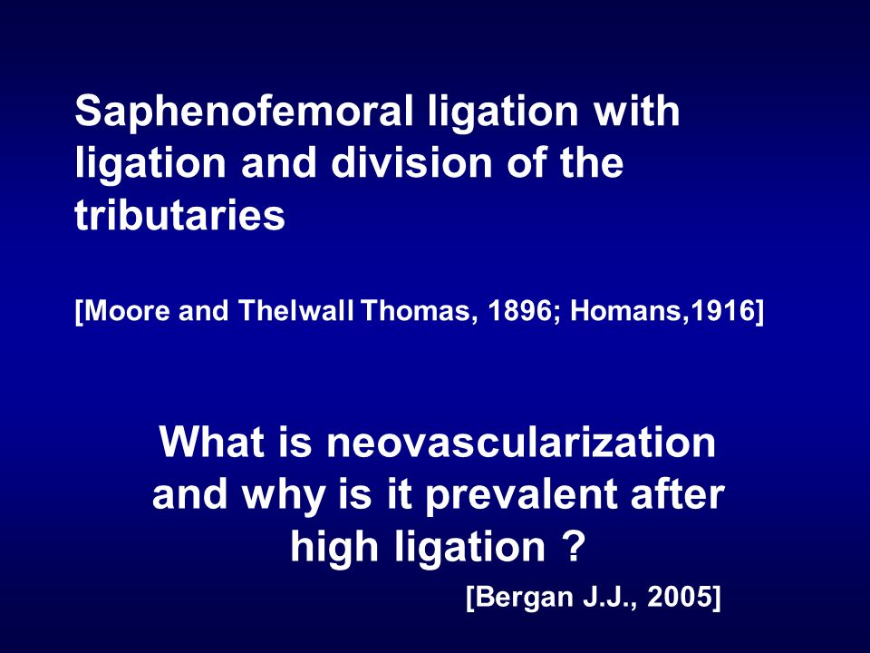 Saphenofemoral ligation with ligation and division of the tributaries [Moore and Thelwall Thomas, 1896; Homans,1916]